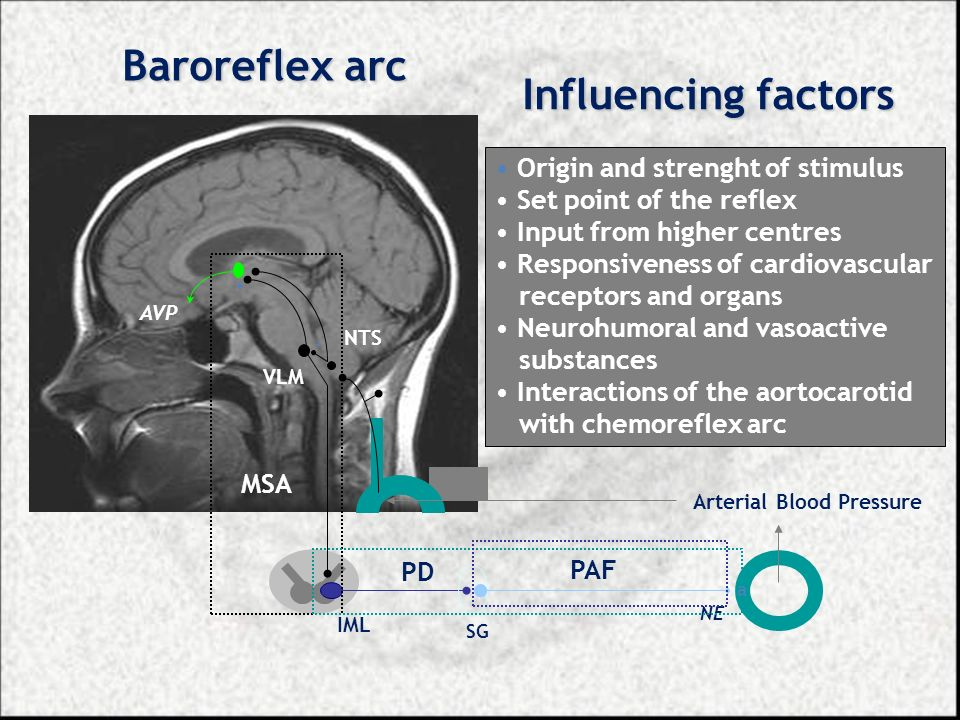- - + AVP NTS VLM NE Arterial Blood Pressure IML SG a Baroreflex arc Influencing factors Origin and strenght of stimulus Set point of the reflex Input