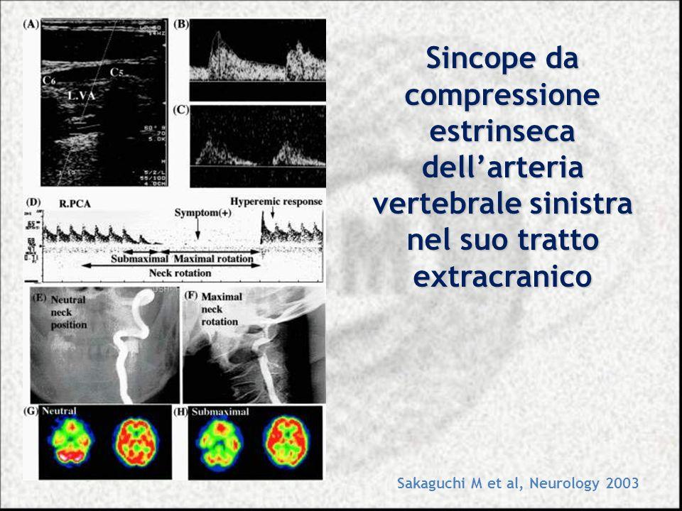 Sincope da compressione estrinseca dellarteria vertebrale sinistra nel suo tratto extracranico Sakaguchi M et al, Neurology 2003