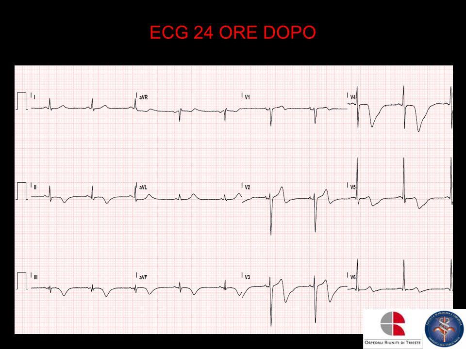 ECG 24 ORE DOPO