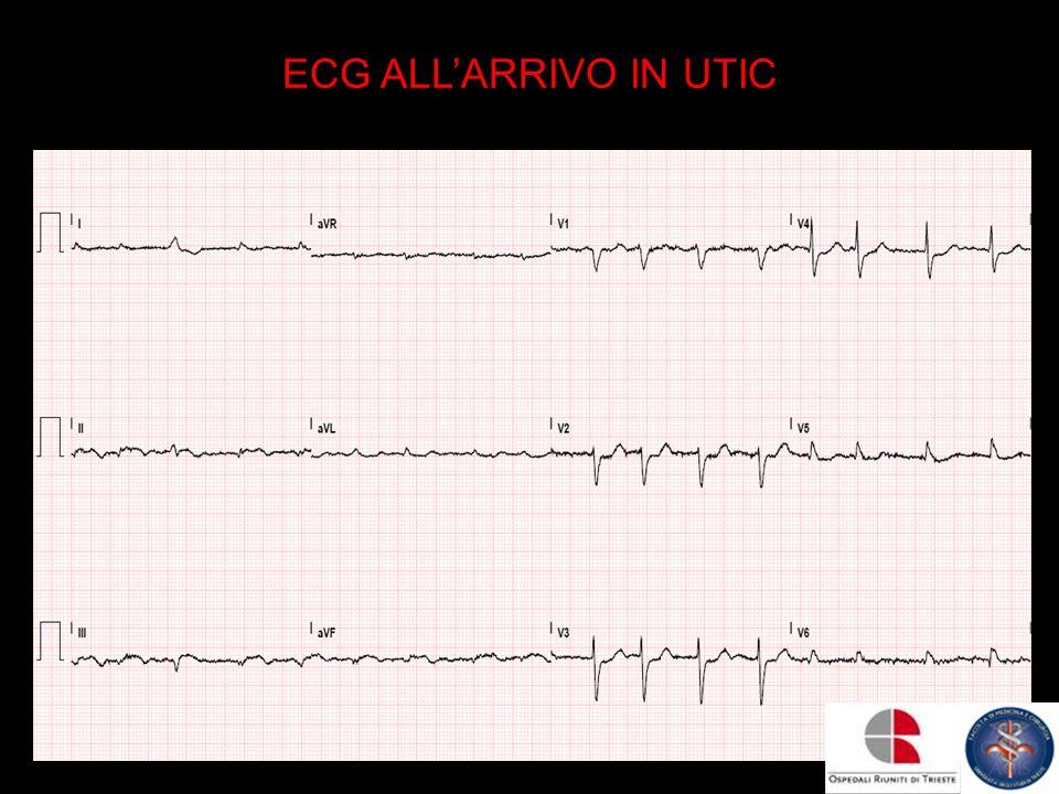 ECG ALLARRIVO IN UTIC