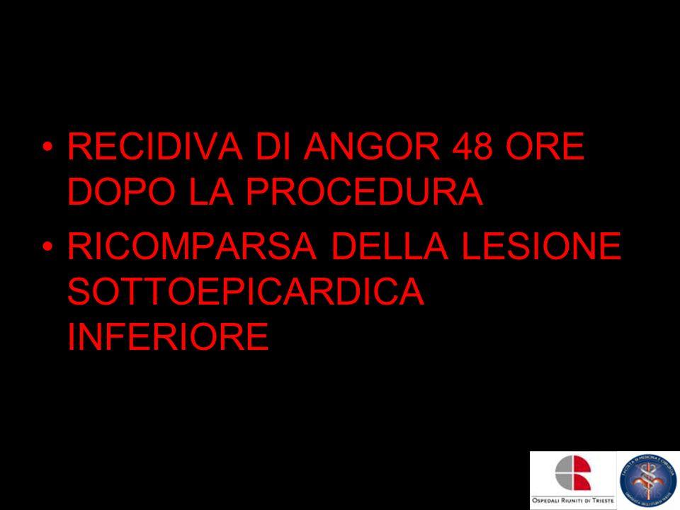 RECIDIVA DI ANGOR 48 ORE DOPO LA PROCEDURA RICOMPARSA DELLA LESIONE SOTTOEPICARDICA INFERIORE