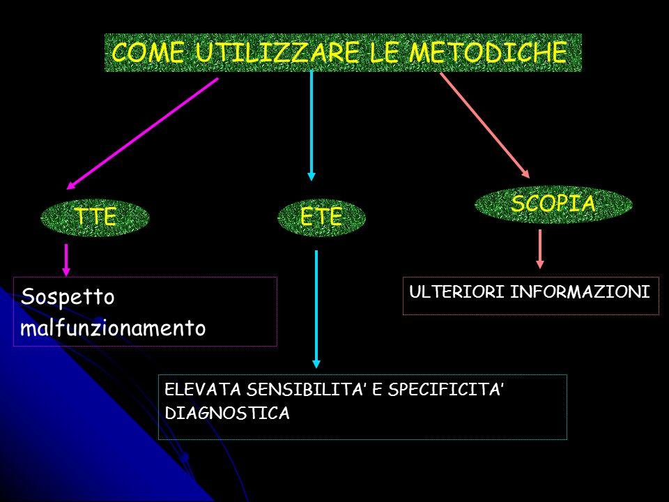 PROTESI MITRALICA SCANNERIZZARE la PROTESI da 0 a 120° How to do it