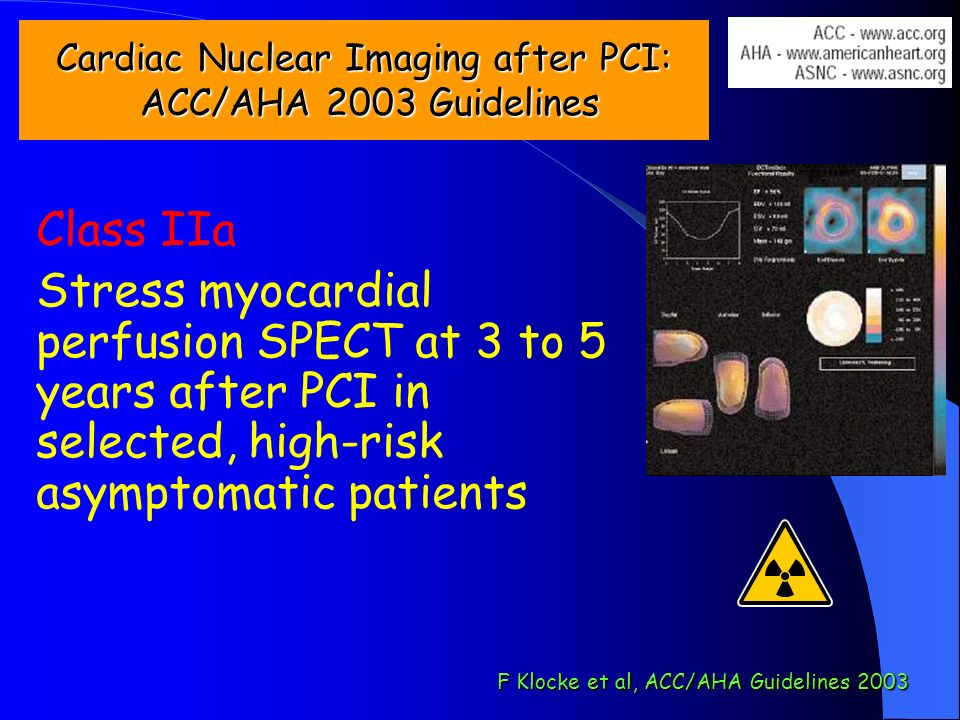 Cardiac Nuclear Imaging after PCI: ACC/AHA 2003 Guidelines Class IIa Stress myocardial perfusion SPECT at 3 to 5 years after PCI in selected, high-ris