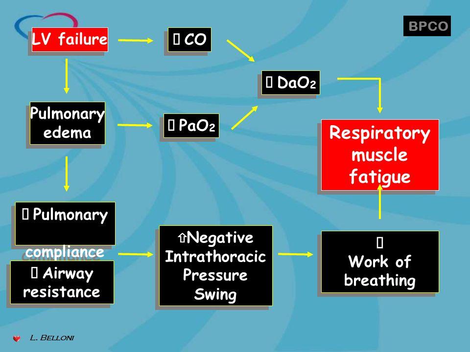 LV failure Pulmonary edema Pulmonary edema Pulmonary compliance Pulmonary compliance Airway resistance Airway resistance Negative Intrathoracic Pressu