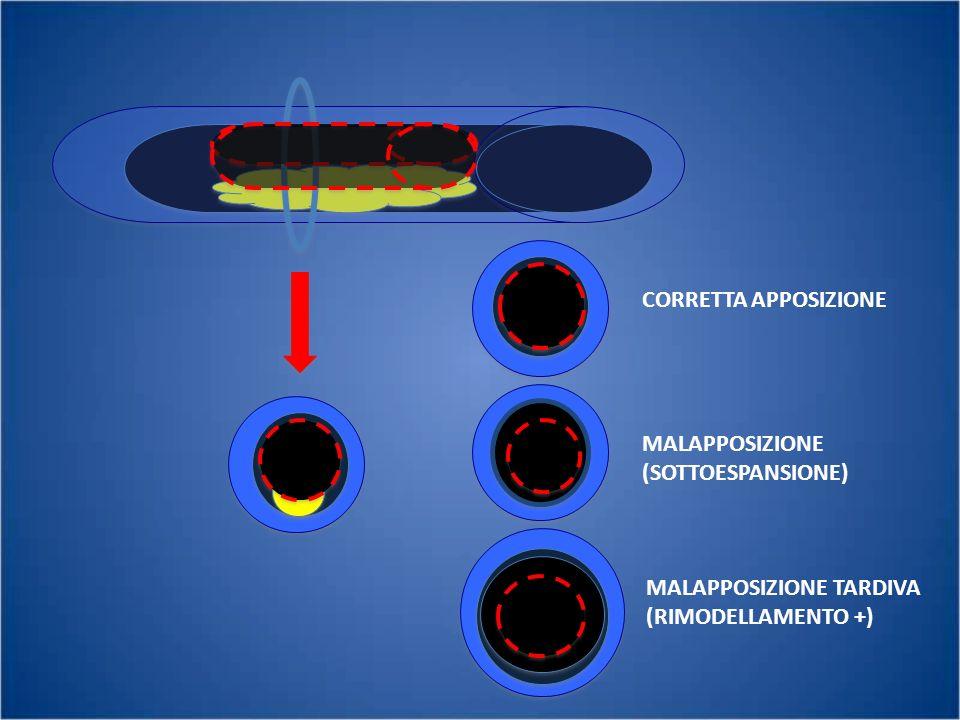 CORRETTA APPOSIZIONE MALAPPOSIZIONE (SOTTOESPANSIONE) MALAPPOSIZIONE TARDIVA (RIMODELLAMENTO +)