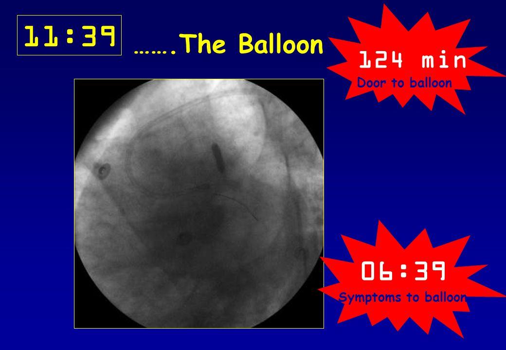 11:39 …….The Balloon 124 min Door to balloon 06:39 Symptoms to balloon