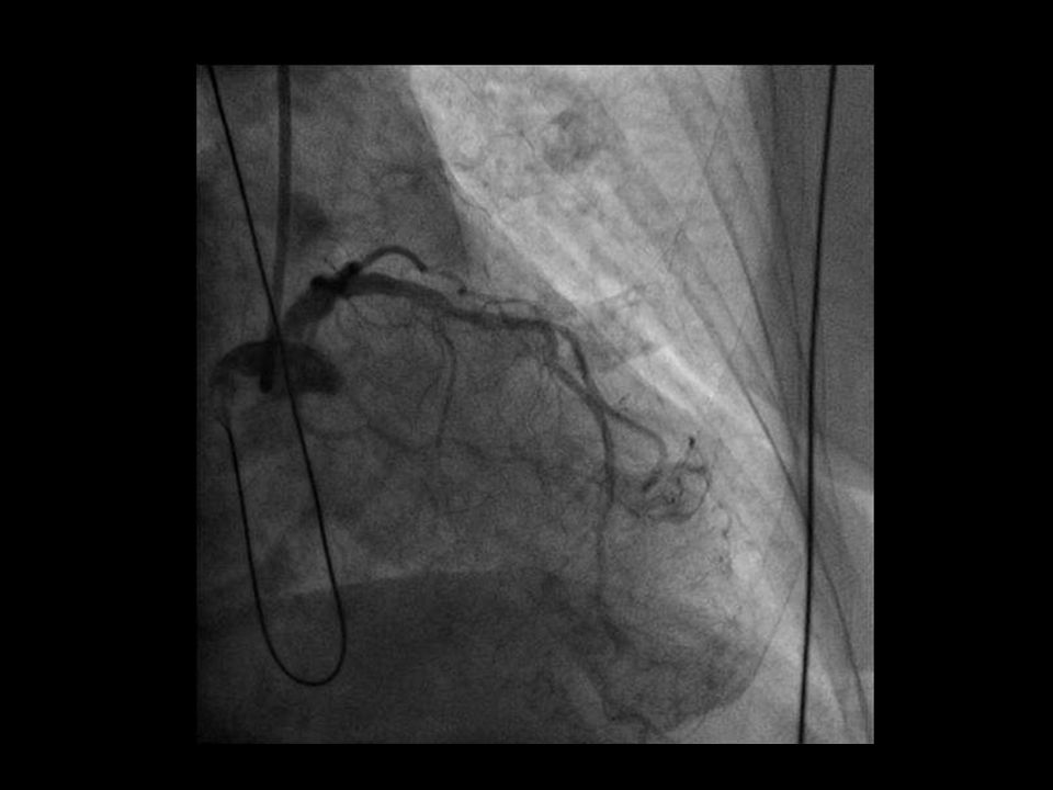 MLD=minimal lumen diameter TLR=target lesion revascularization TVR=target vessel revascularization End pointIVUS-guided implantation Angiography-guided implantation p Postprocedure MLD (mm), primary end point 2.702.510.0002 In-lesion acute gain (mm)1.931.870.31 Freedom from MACE (MI, TLR, TVR, and cardiac death) at 9 mo (%) 85.983.10.47 AVIO: Primary and secondary end points Colombo A.