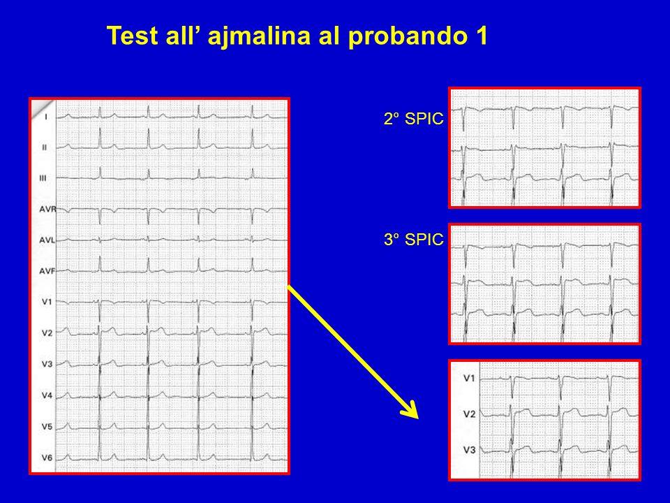Test all ajmalina al probando 1 2° SPIC 3° SPIC
