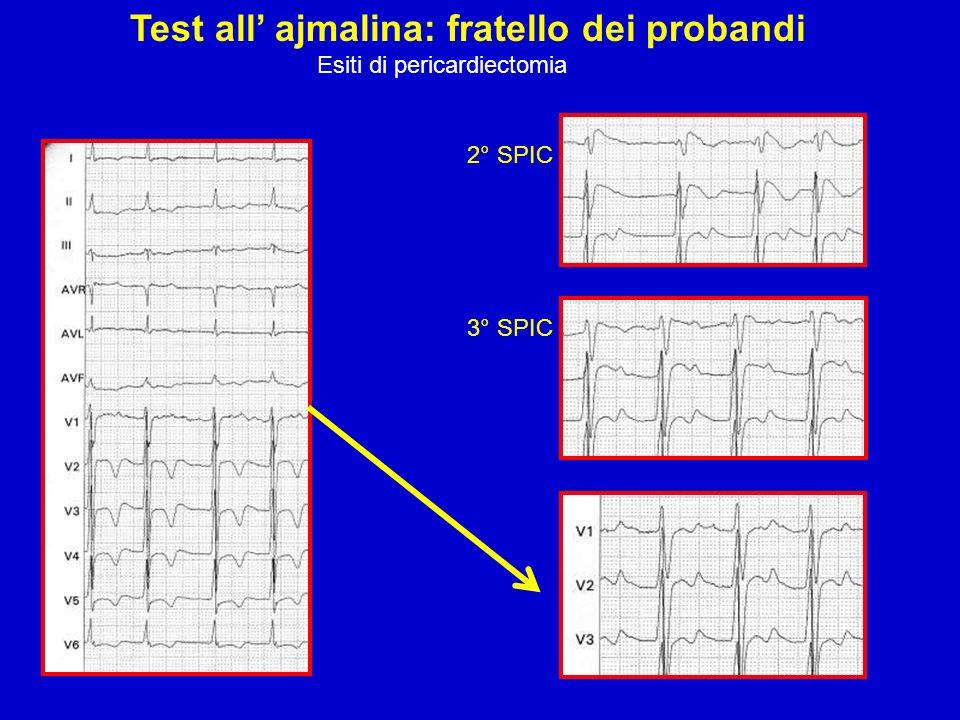 Test all ajmalina: fratello dei probandi Esiti di pericardiectomia 2° SPIC 3° SPIC