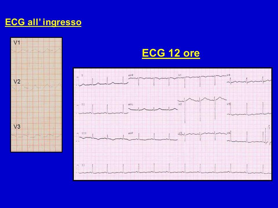 ECG all ingresso ECG 12 ore V1 V2 V3