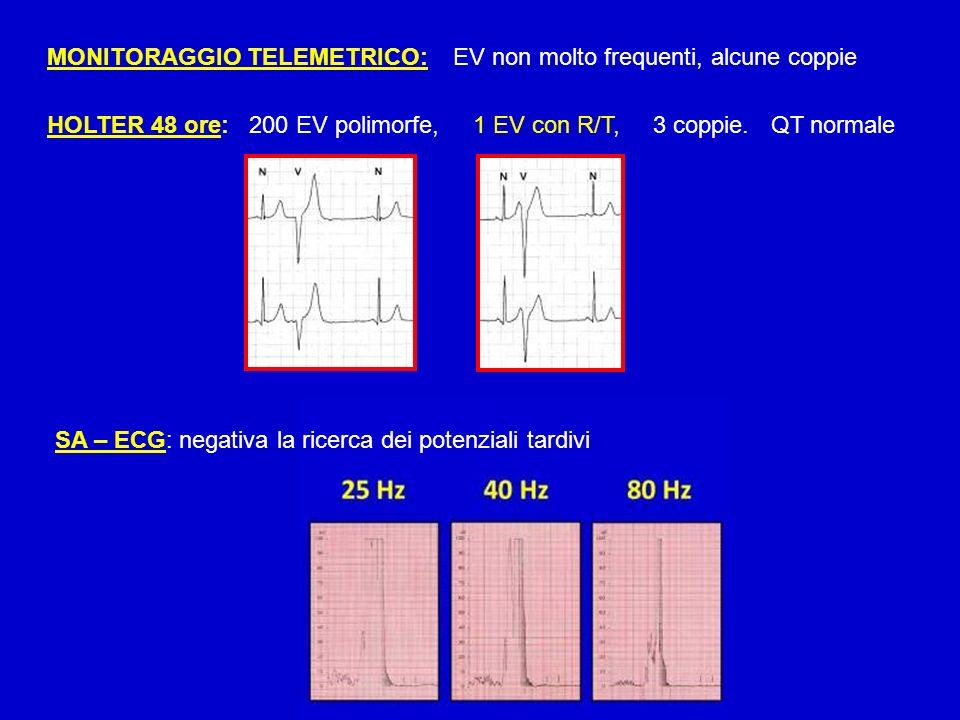 MONITORAGGIO TELEMETRICO: EV non molto frequenti, alcune coppie HOLTER 48 ore: 200 EV polimorfe, 1 EV con R/T, 3 coppie. QT normale SA – ECG: negativa
