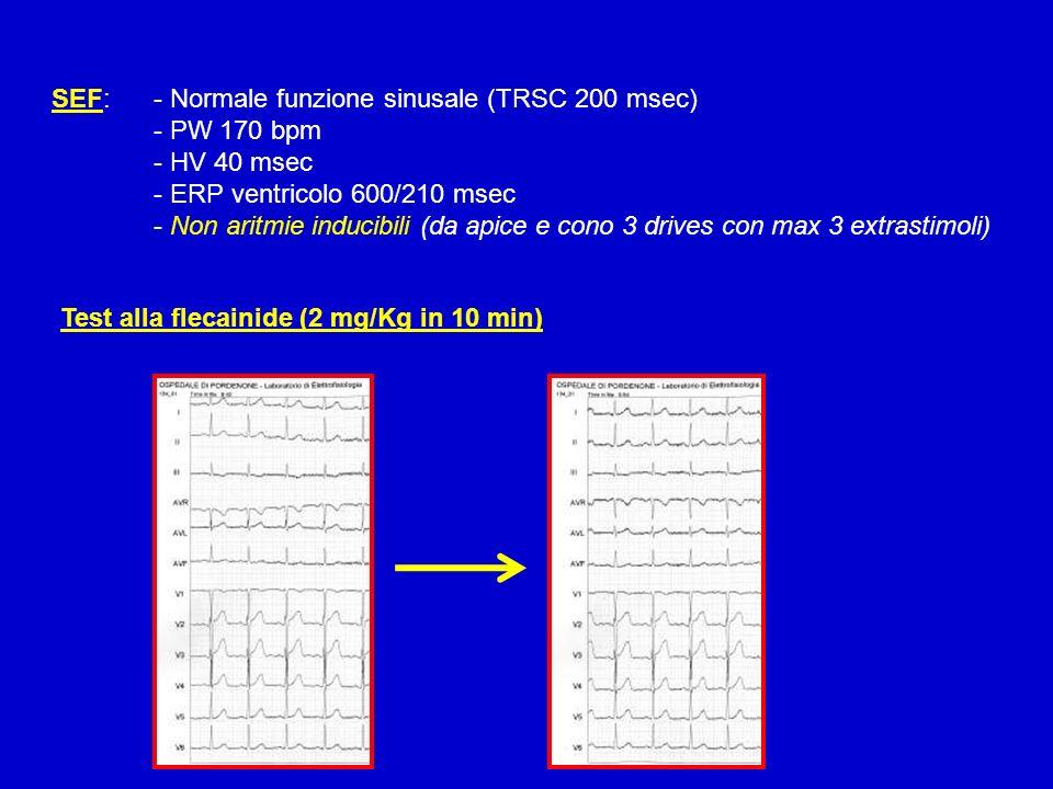 SEF: - Normale funzione sinusale (TRSC 200 msec) - PW 170 bpm - HV 40 msec - ERP ventricolo 600/210 msec - Non aritmie inducibili (da apice e cono 3 d