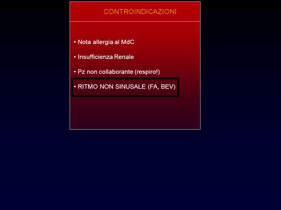 CONTROINDICAZIONI Nota allergia al MdC Insufficienza Renale Pz non collaborante (respiro!) RITMO NON SINUSALE (FA, BEV)