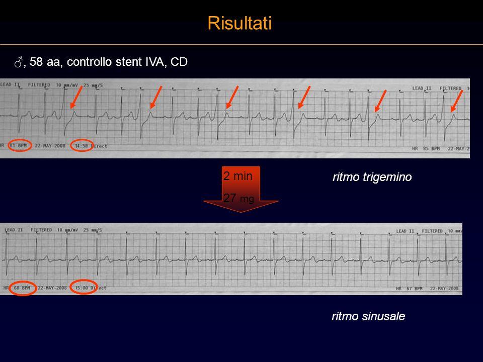 Risultati 2 min 27 mg ritmo trigemino ritmo sinusale, 58 aa, controllo stent IVA, CD