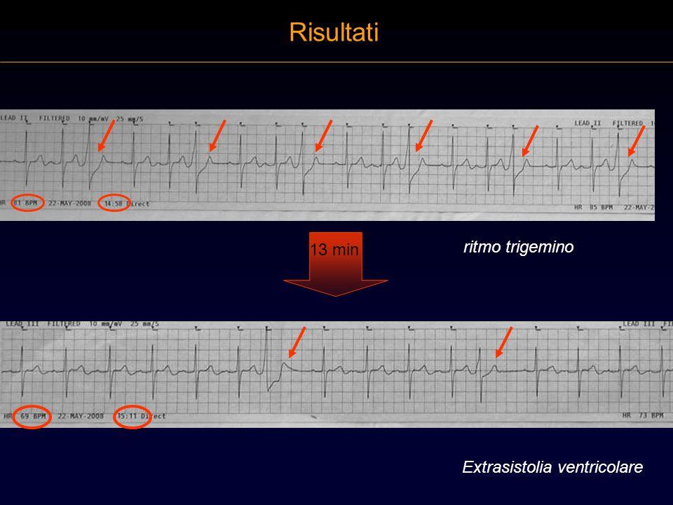 Risultati 13 min ritmo trigemino Extrasistolia ventricolare