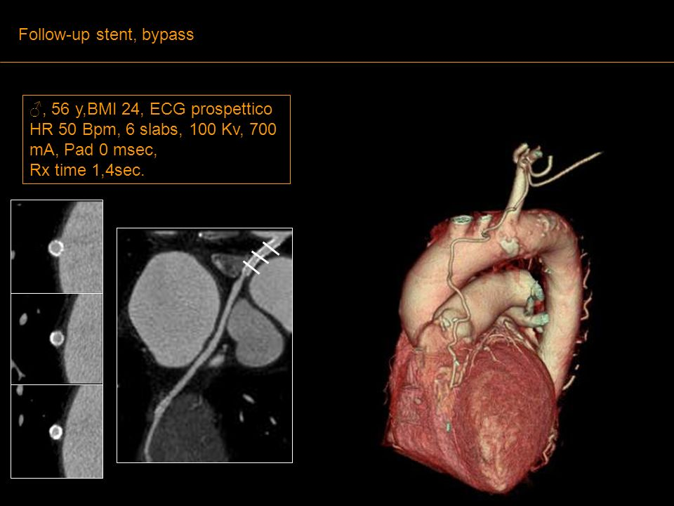 , 56 y,BMI 24, ECG prospettico HR 50 Bpm, 6 slabs, 100 Kv, 700 mA, Pad 0 msec, Rx time 1,4sec. Follow-up stent, bypass