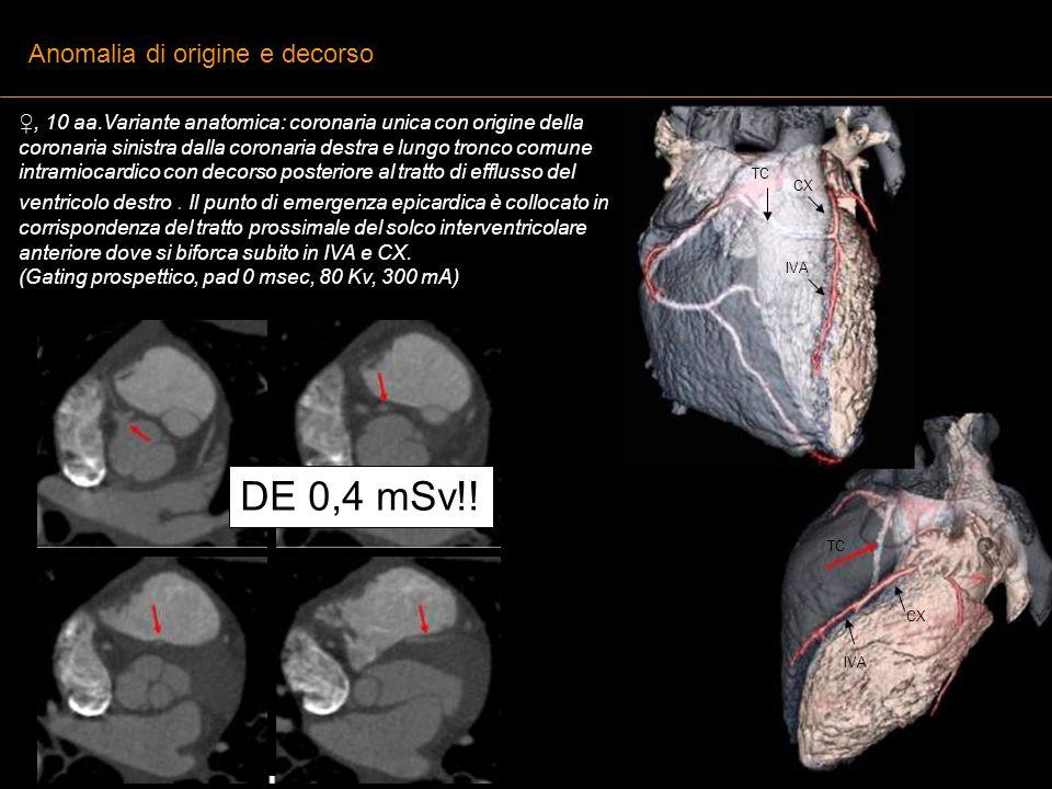 , 10 aa.Variante anatomica: coronaria unica con origine della coronaria sinistra dalla coronaria destra e lungo tronco comune intramiocardico con deco