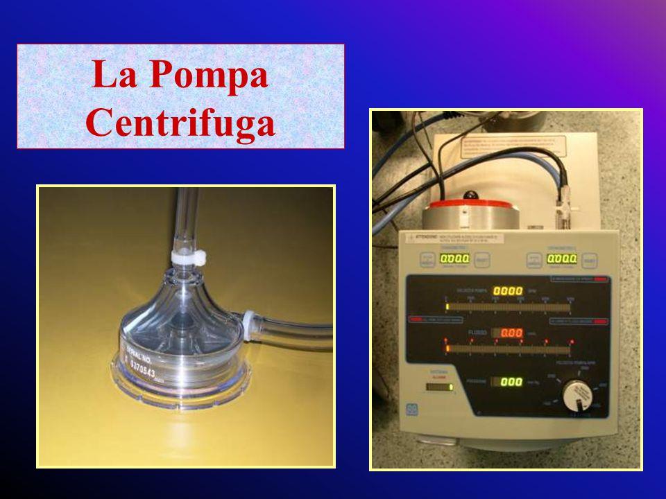 La Pompa Centrifuga