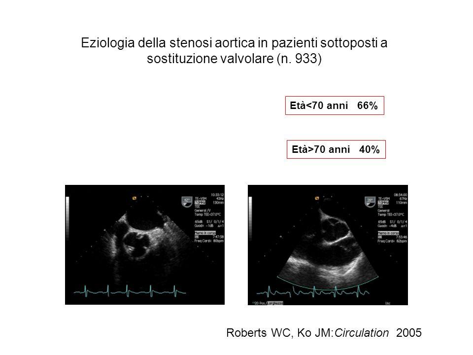 Eziologia della stenosi aortica in pazienti sottoposti a sostituzione valvolare (n. 933) Roberts WC, Ko JM:Circulation 2005 Età<70 anni 66% Età>70 ann