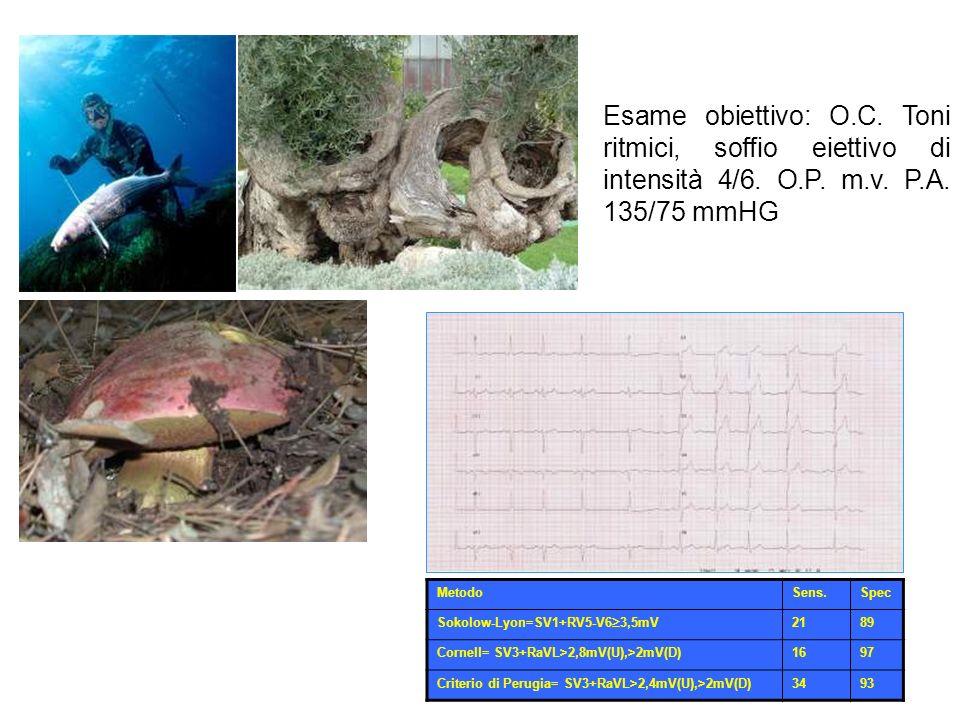 Esame obiettivo: O.C. Toni ritmici, soffio eiettivo di intensità 4/6. O.P. m.v. P.A. 135/75 mmHG MetodoSens.Spec Sokolow-Lyon=SV1+RV5-V6 3,5mV 2189 Co