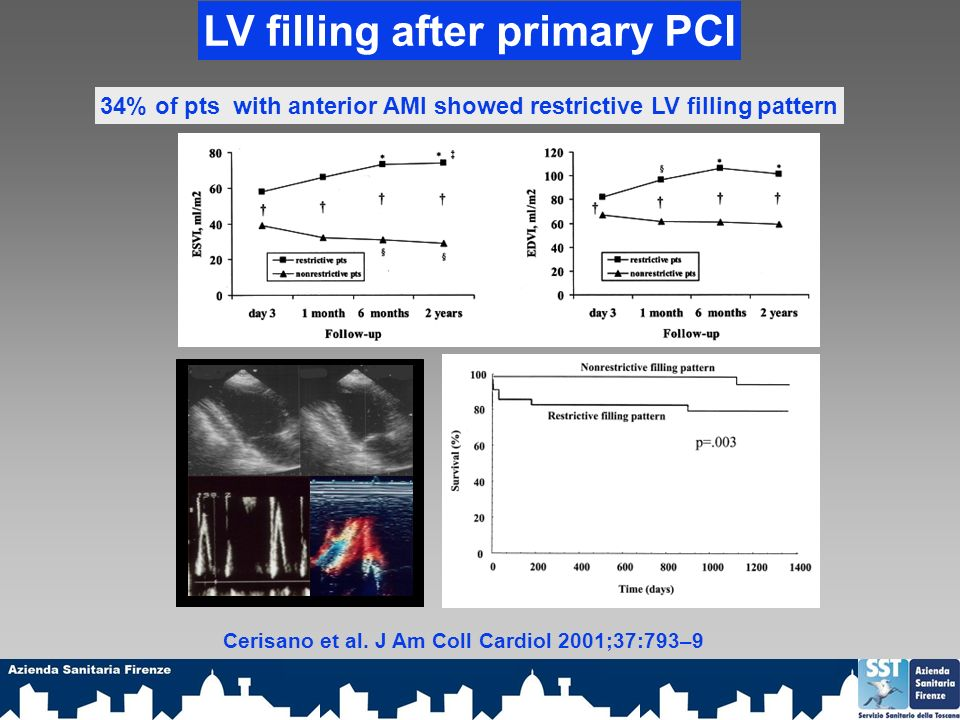 LV filling after primary PCI 34% of pts with anterior AMI showed restrictive LV filling pattern Cerisano et al. J Am Coll Cardiol 2001;37:793–9