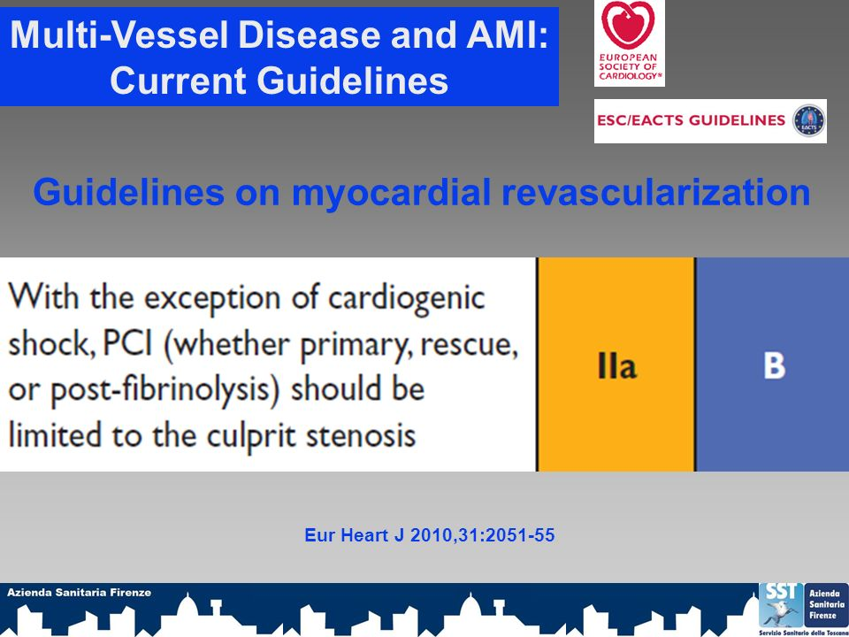 Multi-Vessel Disease and AMI: Current Guidelines Eur Heart J 2010,31:2051-55 Guidelines on myocardial revascularization