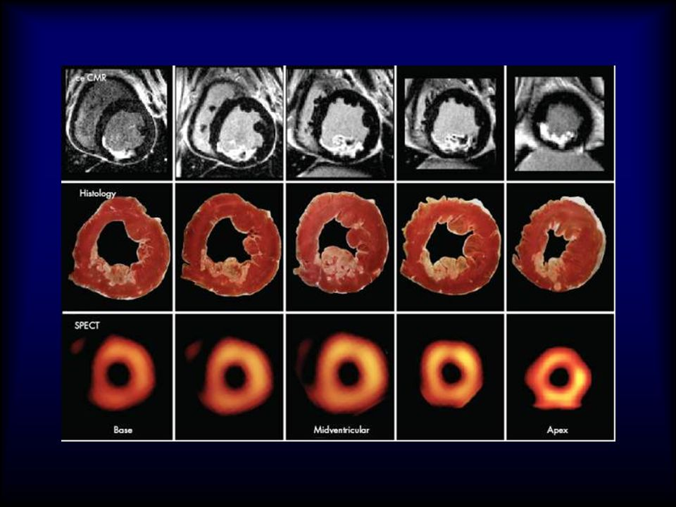 Assessment of reversibile myocardial dysfuntion in chronic ischaemic disease: comparision of CE-MR and SPCT and PET- EHJ 2006