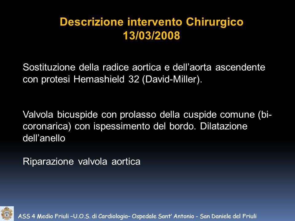 ASS 4 Medio Friuli –U.O.S. di Cardiologia– Ospedale Sant Antonio - San Daniele del Friuli Descrizione intervento Chirurgico 13/03/2008 Sostituzione de