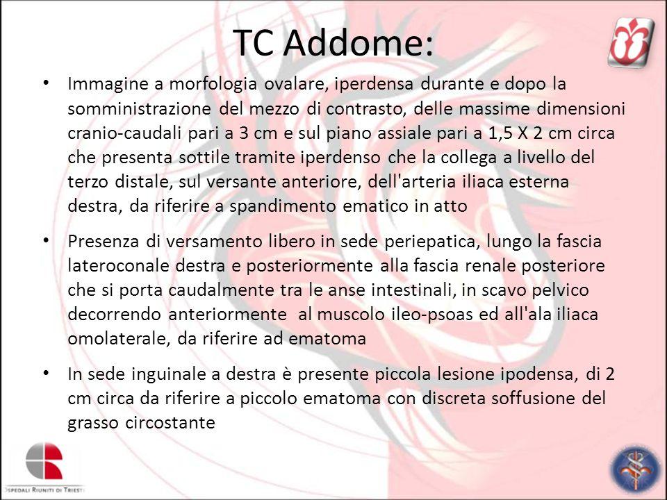 TC Addome: Immagine a morfologia ovalare, iperdensa durante e dopo la somministrazione del mezzo di contrasto, delle massime dimensioni cranio-caudali