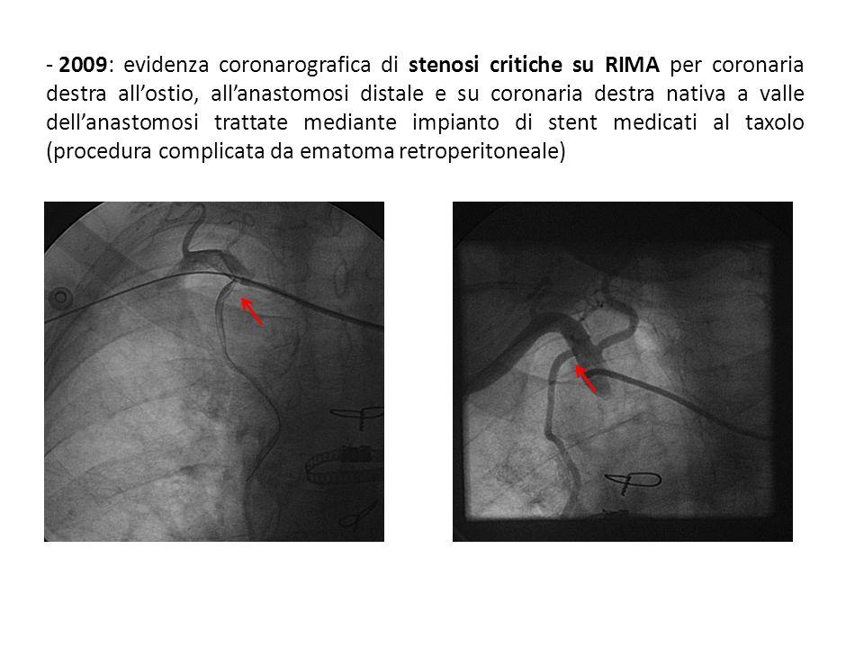 Parametri durante il ricovero: - PA 120/70 mmhg - FC 78 bpm (RS) Esami di Laboratorio: emoglobina 13,2 g/dl, colesterolo totale 179 mg/dl, colesterolo LDL 115 mg/dl, HDL 38 mg/dl, trigliceridi 125 mg/dl, creatinina 0.85 mg/dl (eGFR 68 ml/min/1.73m2), glicemia basale e funzionalità epatica nei limiti.