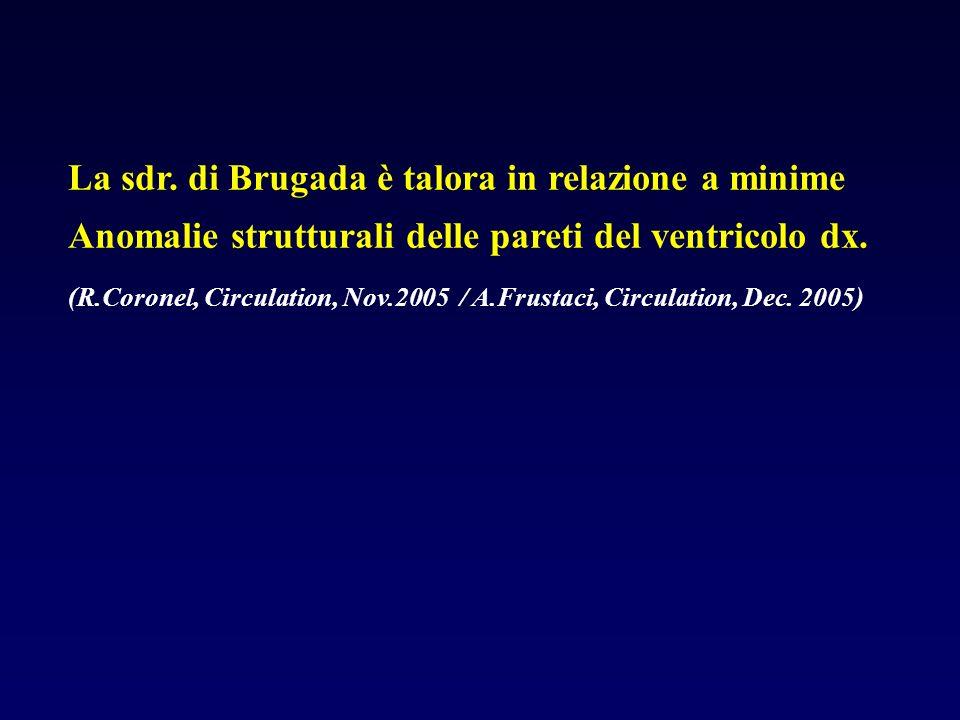La sdr. di Brugada è talora in relazione a minime Anomalie strutturali delle pareti del ventricolo dx. (R.Coronel, Circulation, Nov.2005 / A.Frustaci,