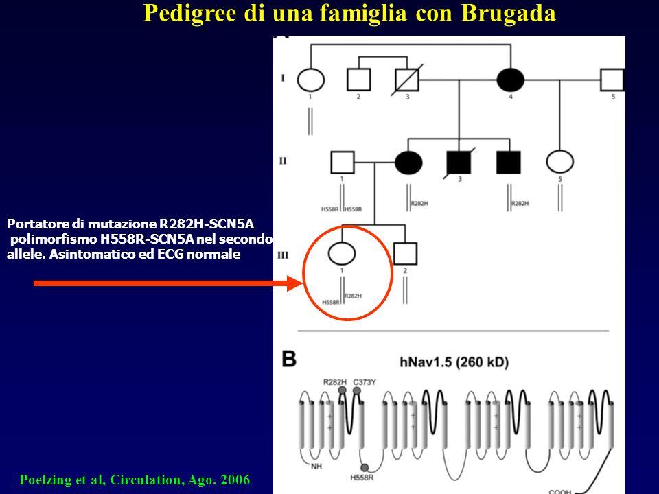 Pedigree di una famiglia con Brugada Portatore di mutazione R282H-SCN5A polimorfismo H558R-SCN5A nel secondo allele. Asintomatico ed ECG normale Poelz