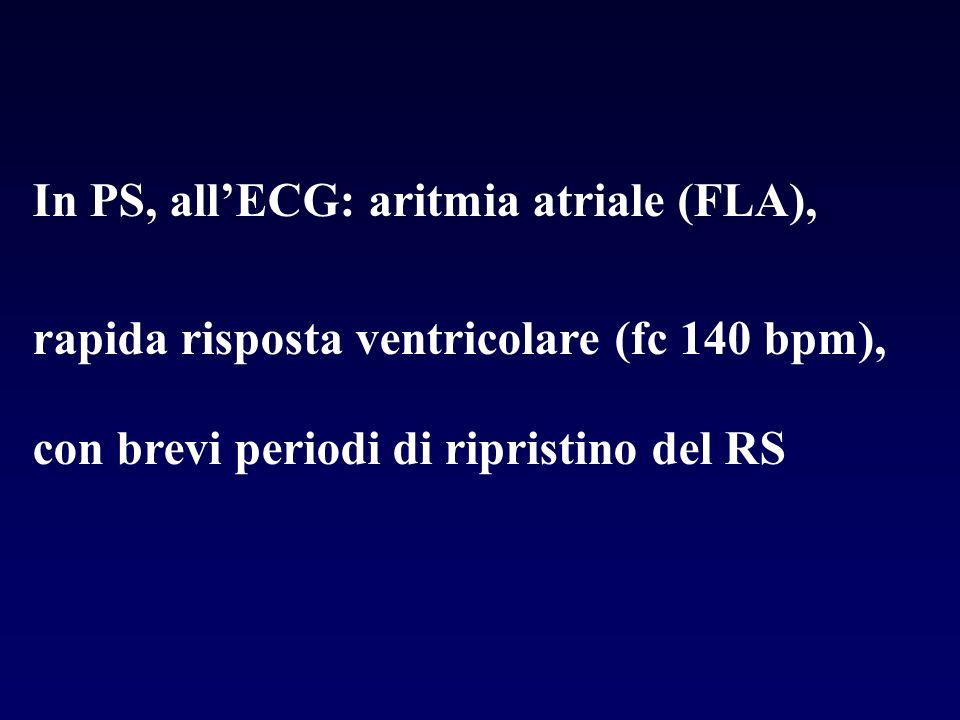 In PS, allECG: aritmia atriale (FLA), rapida risposta ventricolare (fc 140 bpm), con brevi periodi di ripristino del RS