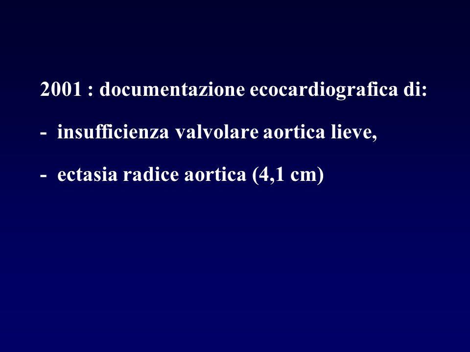 2001 : documentazione ecocardiografica di: - insufficienza valvolare aortica lieve, - ectasia radice aortica (4,1 cm)