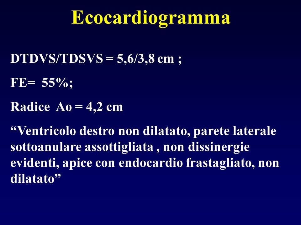 DTDVS/TDSVS = 5,6/3,8 cm ; FE= 55%; Radice Ao = 4,2 cm Ventricolo destro non dilatato, parete laterale sottoanulare assottigliata, non dissinergie evi