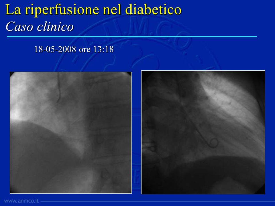 La riperfusione nel diabetico PCI primaria vs Trombolisi Timmer JR,et al.