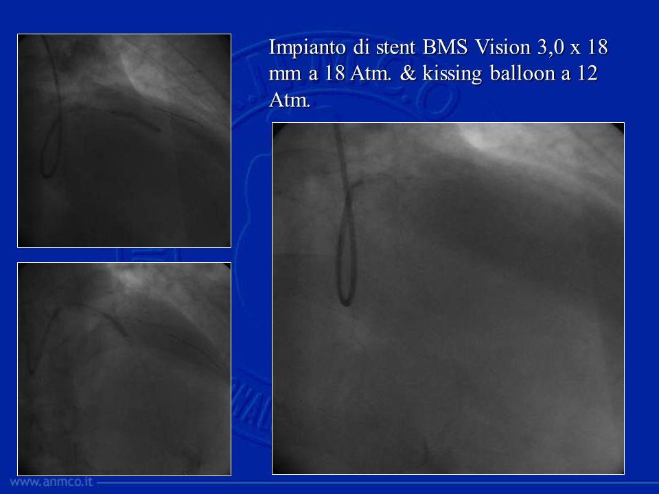 Dopo 2 giorni: PCI Cx (BMS) e trasferimento Ospedale Periferico (no Cardiologia) in III a giornata In UTIC glicemia 288 mg/dl.