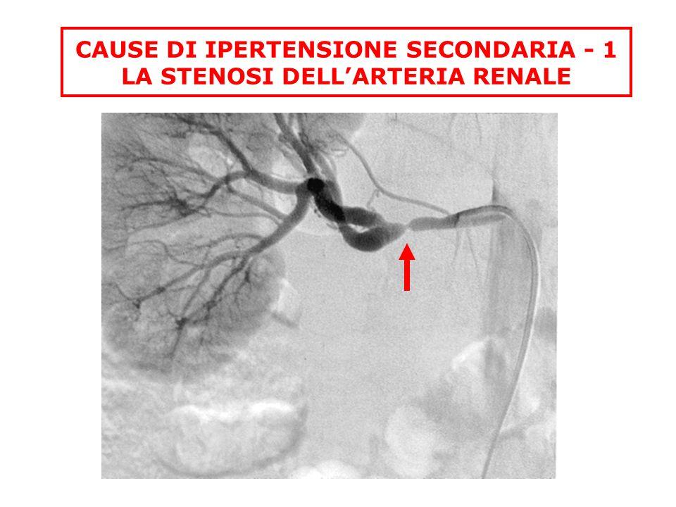 CAUSE DI IPERTENSIONE SECONDARIA - 1 LA STENOSI DELLARTERIA RENALE