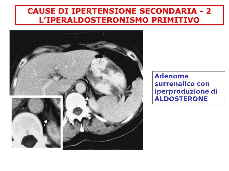 CAUSE DI IPERTENSIONE SECONDARIA - 2 LIPERALDOSTERONISMO PRIMITIVO Adenoma surrenalico con iperproduzione di ALDOSTERONE