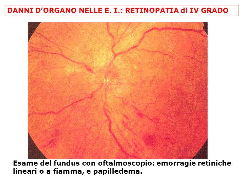 DANNI DORGANO NELLE E. I.: RETINOPATIA di IV GRADO Esame del fundus con oftalmoscopio: emorragie retiniche lineari o a fiamma, e papilledema.