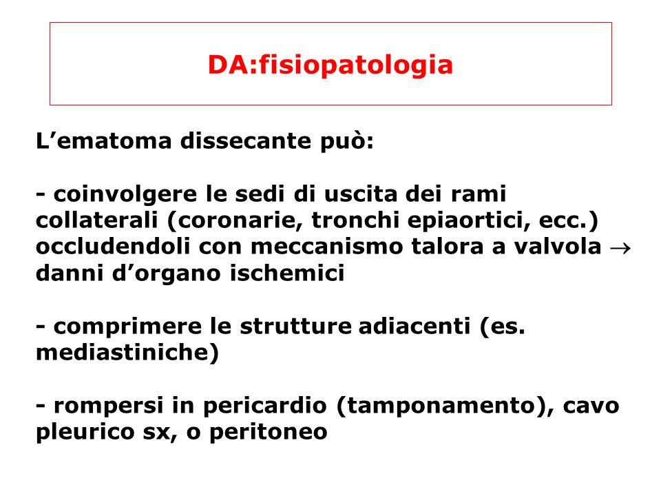 DA:fisiopatologia Lematoma dissecante può: - coinvolgere le sedi di uscita dei rami collaterali (coronarie, tronchi epiaortici, ecc.) occludendoli con