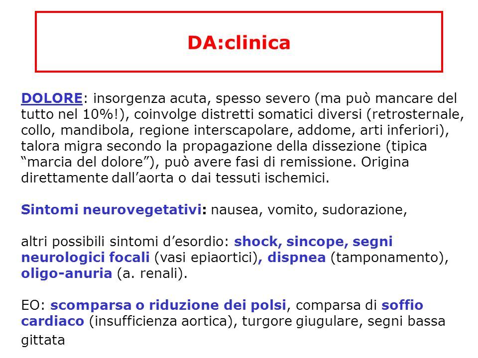 DA:clinica DOLORE: insorgenza acuta, spesso severo (ma può mancare del tutto nel 10%!), coinvolge distretti somatici diversi (retrosternale, collo, ma