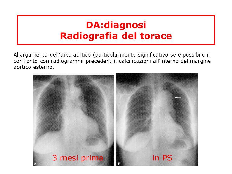 DA:diagnosi Radiografia del torace Allargamento dellarco aortico (particolarmente significativo se è possibile il confronto con radiogrammi precedenti