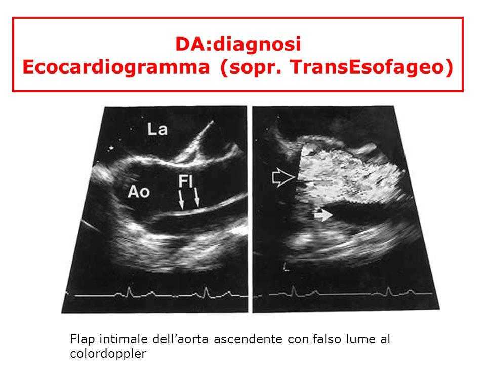 DA:diagnosi Ecocardiogramma (sopr. TransEsofageo) Flap intimale dellaorta ascendente con falso lume al colordoppler
