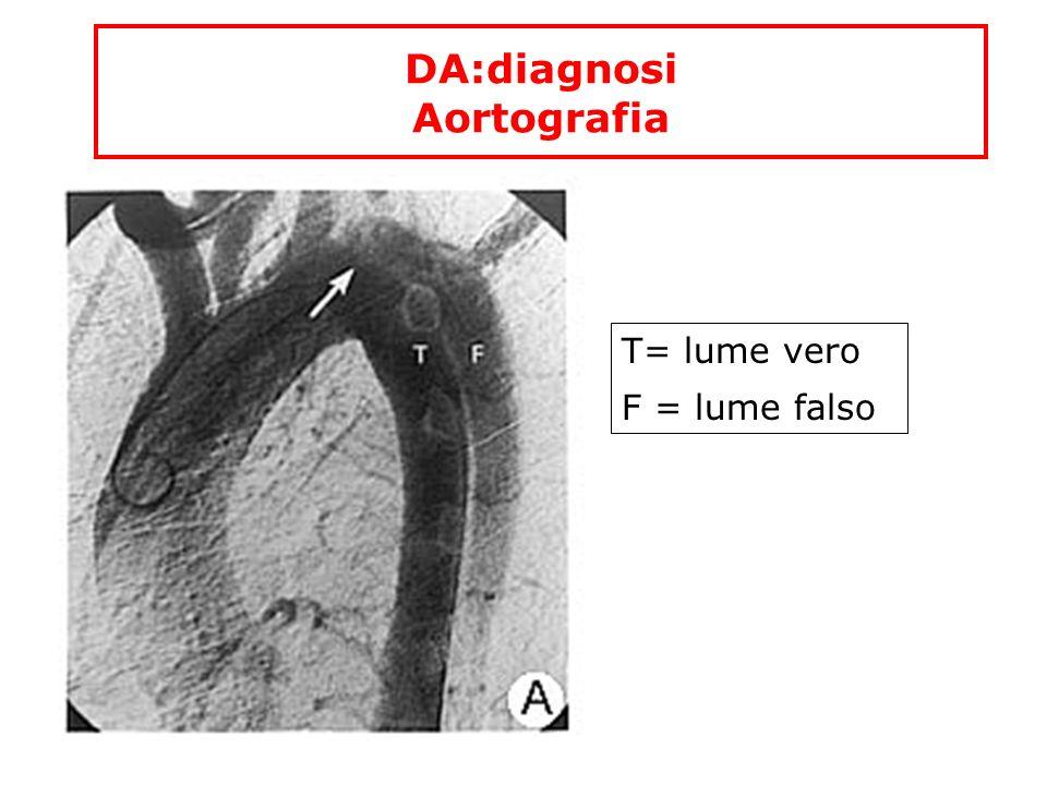 DA:diagnosi Aortografia T= lume vero F = lume falso