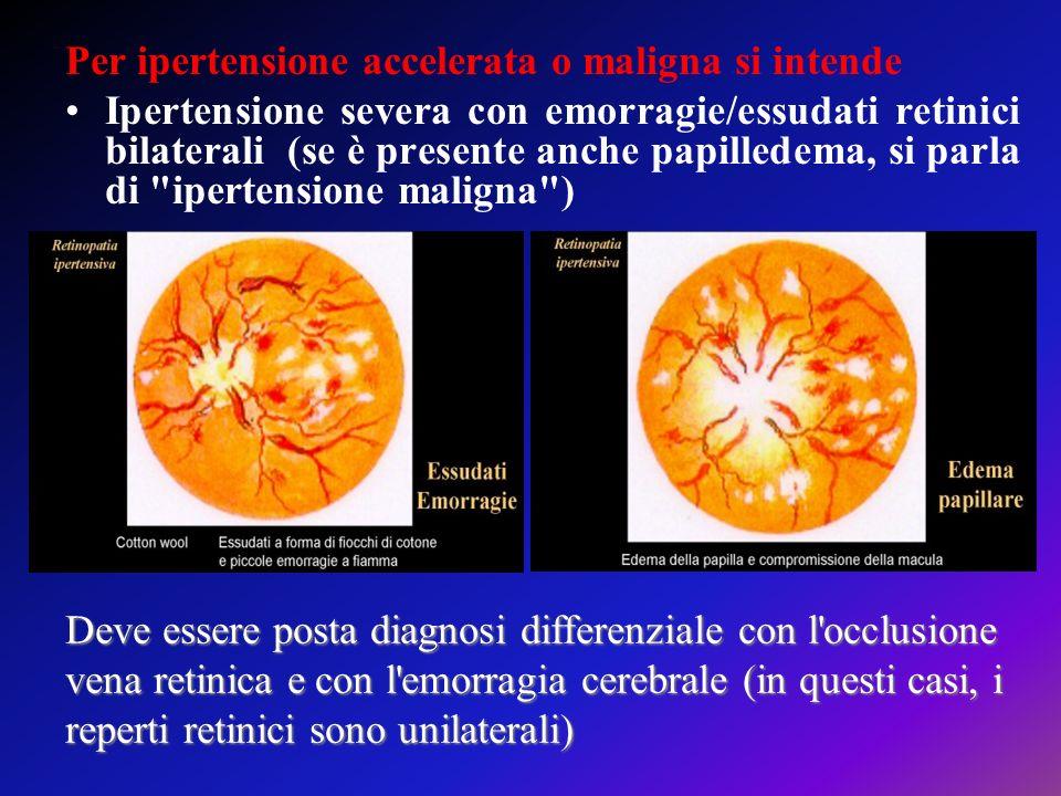Per ipertensione accelerata o maligna si intende Ipertensione severa con emorragie/essudati retinici bilaterali (se è presente anche papilledema, si p