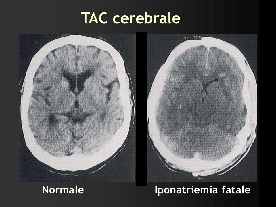 TAC cerebrale NormaleIponatriemia fatale