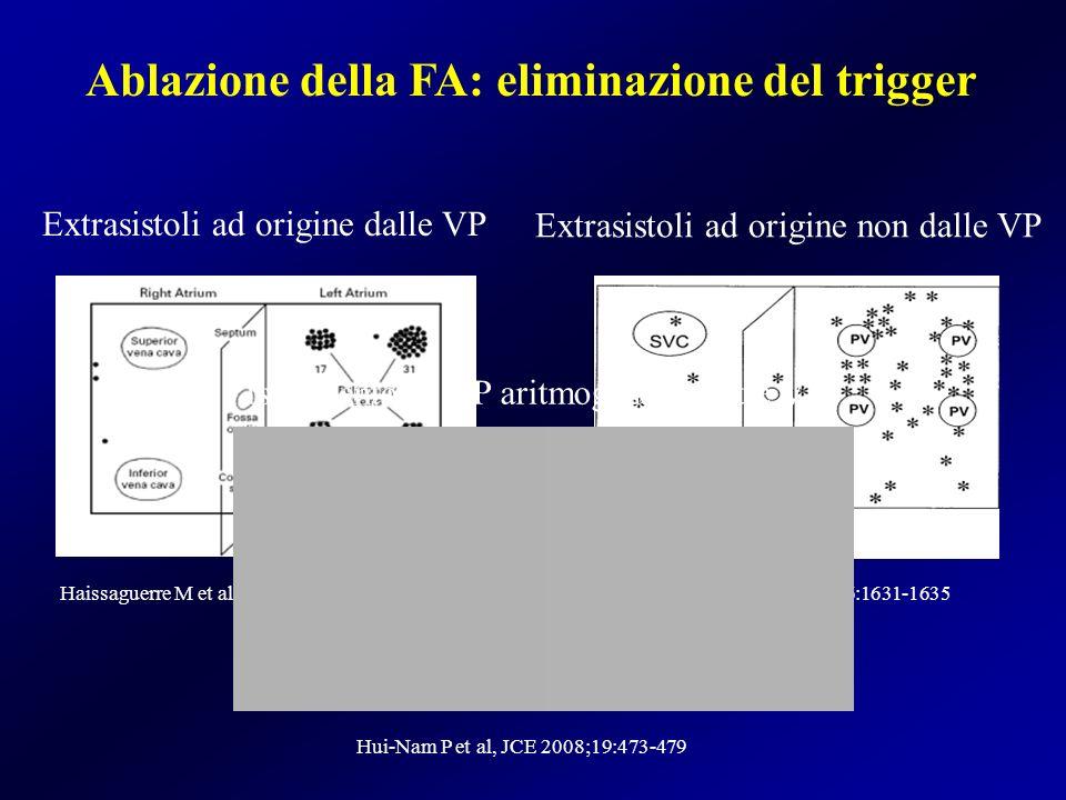Ablazione della FA: eliminazione del trigger Haissaguerre M et al, NEJM 1998;339:659-666Shah D et al, PACE 2003;26:1631-1635 Extrasistoli ad origine d
