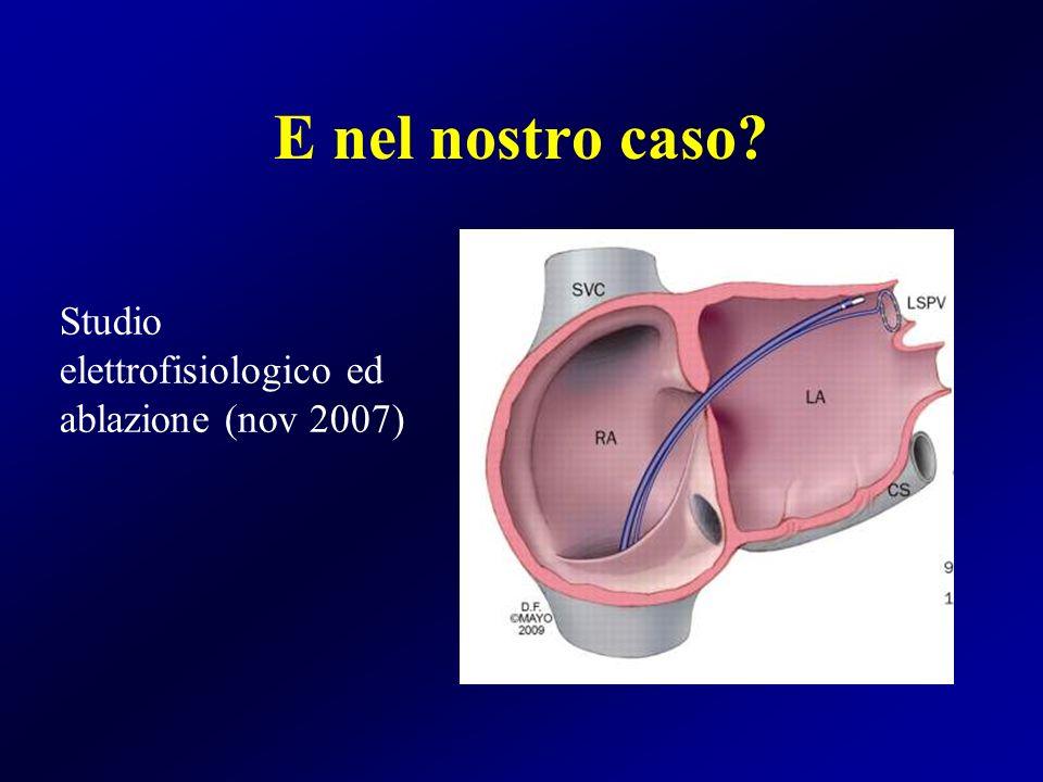 Firing in vena polmonare superiore e inferiore laterale