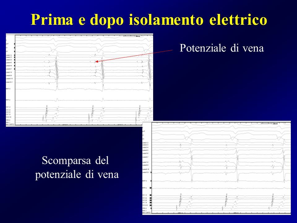Prima e dopo isolamento elettrico Potenziale di vena Scomparsa del potenziale di vena